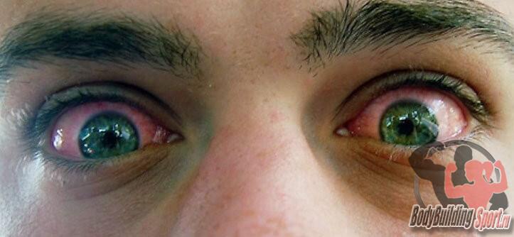 Глаза марихуана